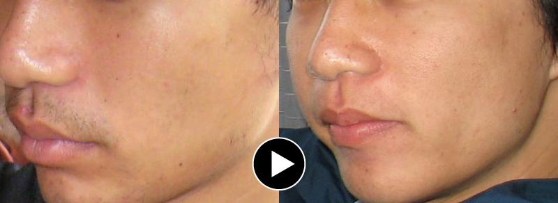 医療ヒゲ脱毛による変化